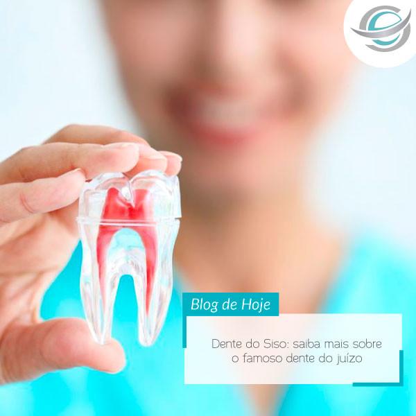 Dente do Siso: saiba mais sobre o famoso dente do juízo