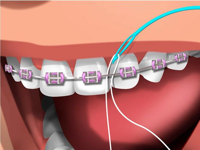 O uso do fio dental na ortodontia fixa