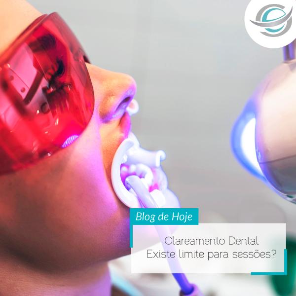 Clareamento Dental – Existe limite para sessões?