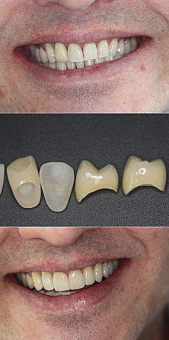 aparelhos fixos ou removíveis que são colocados na cavidade bucal para substituir a perda de um ou de vários dentes.