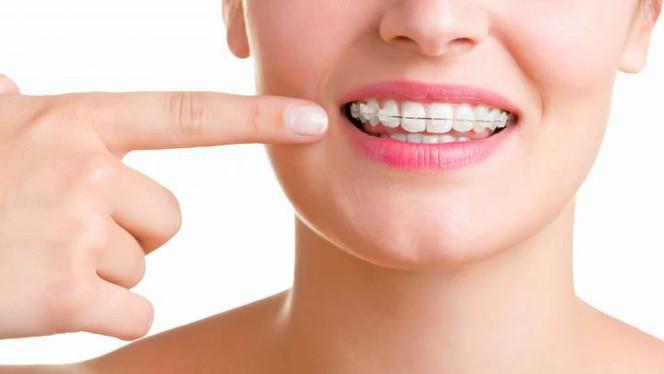 Ortodontia para todas as idades