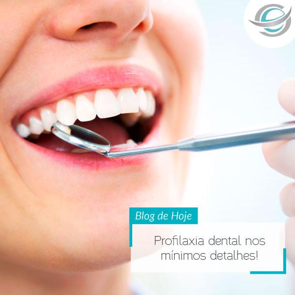 Profilaxia dental nos mínimos detalhes