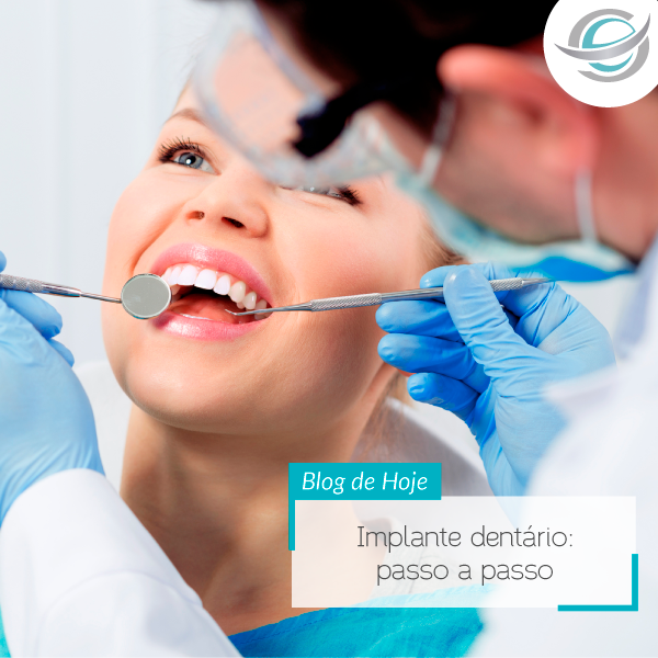 Implante dentário: passo a passo