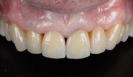 una bocca con denti