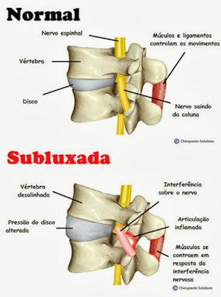 subluxação vertebal