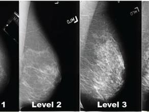 מה חשוב לדעת על צפיפות רקמת השד?