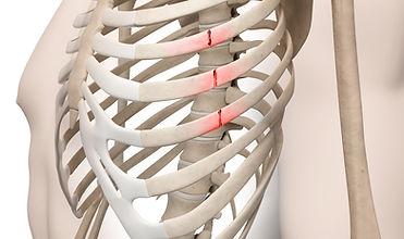 Rib Fracture.jpg