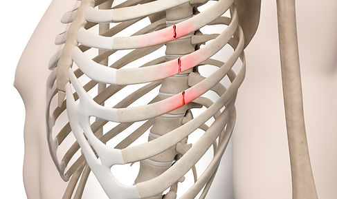 Ultrasound - brachial-plexus (1).jpg