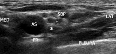 ultrasound for beginners1.jpg
