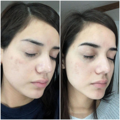 Chemical Peel to reduce hyperpigmentation in Sugar Land TX