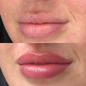 Natural Tones Lip Blushing