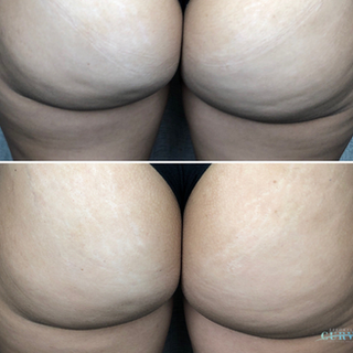 Booty Shot🍑 Just 1 treatment of Alphashape has resulted in a reduction of dimpling and change/lift in butt Curves!  This is just the 1st treatment of a course of 6! We can't wait to see the booty transformation when the course is complete 😍