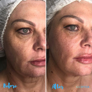 Skin lifting, tightening, jawline contouring and overall rejuvenation after only 1 session. ♥️