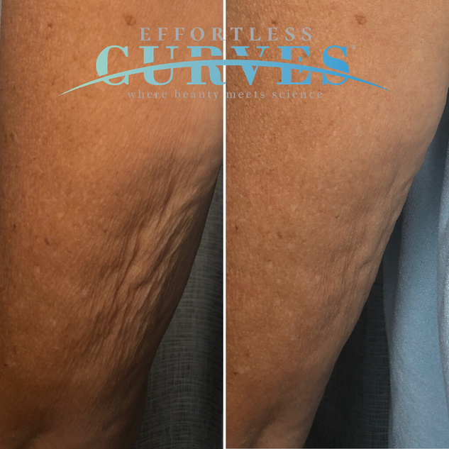 Alpha Shape PRO Arm tightening. Loose skin was significantly tighened immediately after only one treatment. For best results we recommend a course of sessions for all of our body treatments.