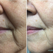 💜Take a look at these amazing folds and lines results from just 1 treatment of AlphaShape Pro.🙌