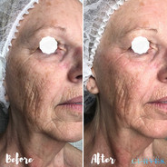 This is after just 1 treatment 🙌 Reduce fine lines and wipe years away!