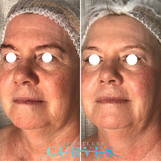 Alpha Shape PRO results before and after three sessions. Definite skin tightening and wrinkle reduction all over the face and neck as well as an incredible imporovement in skin tone and vibrance! 🙌🏼