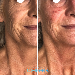 Clients first session with Alpha Shape PRO. Notice the incredible result in both skin tightening and wrinkle reduction despite no heavy make up in the after photo. 🙀