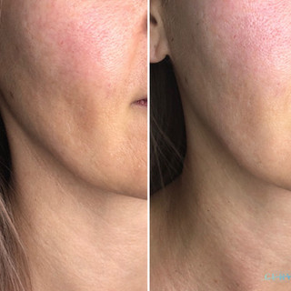 👀Take a look at these AlphaShape Pro results after just 1 treatment!🥰 This single treatment resulted in the skin tightening and lifting, jaw contouring and fold reduction