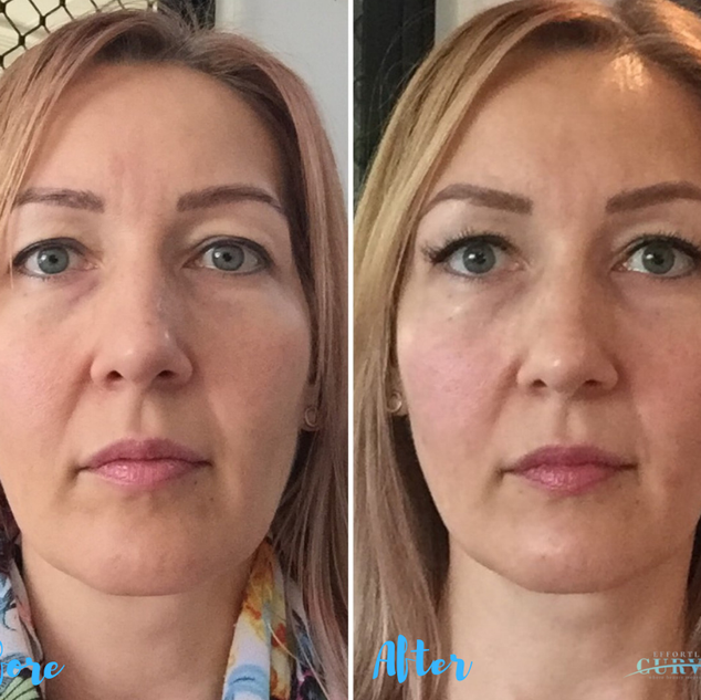 AlphaShape PRO results after just 4 treatments! 🤯 This beautiful client also switched to our retail line of products. Wow 😍