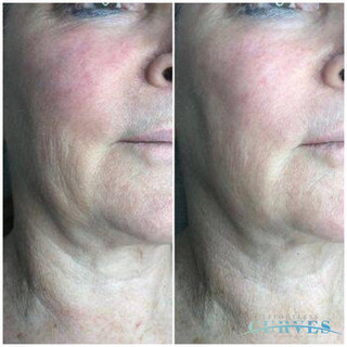 ✋Take a look at these facial sculpting results! AlphaShape PRO will astound you with its skin firming results!  After just 1 treatment our client's cheek lines are minimised, and eye bags reduced!