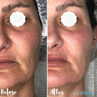 """We love hearing from our clients; """"OMG I love it! I'm really impressed with the results!! Thank you so much!"""" 🙌  Check out these amazing Alphashape and lip plump treatment results! This treatment focused on mouth lines and overall rejuvenation."""