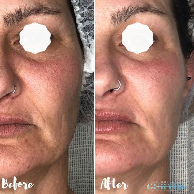 "We love hearing from our clients; ""OMG I love it! I'm really impressed with the results!! Thank you so much!"" 🙌  Check out these amazing Alphashape and lip plump treatment results! This treatment focused on mouth lines and overall rejuvenation."