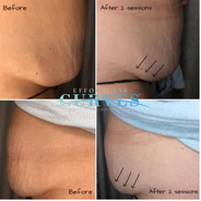 Alpha Shape PRO Fat blasting - results after 2 sessions showing a significant reduction in belly fat without any change to diet and exercise. 😍