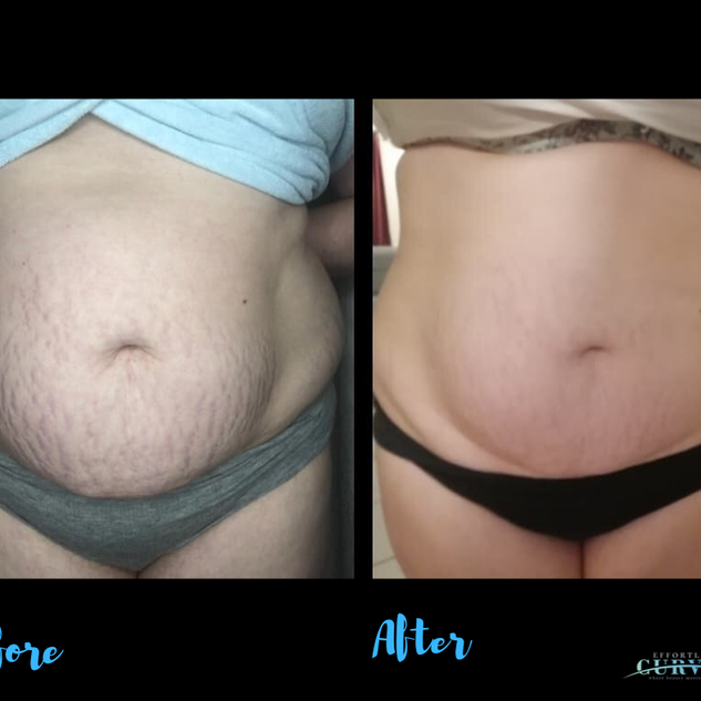 Alpha Shape Stomach treatment after just 1 session! 🙀 This before photo taken in Salon and the after photo was taken by the client at home 3 weeks later!  Incredible 👌