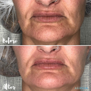 For this beautiful client, we focused on mouth lines and overall rejuvenation. Before and After only 1 session❣️