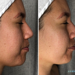 Check out these Alphashape results! ✨ This is before and after just 1 facial contouring session!  There's a noticeable reduction in jowls, jaw and chin contouring, softening of chin skin tone and brighter complexion 😍  This was the 1st of 6 treatments. We can't wait to see the end result!