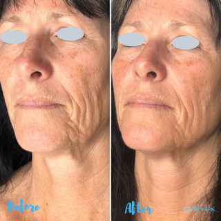 Check out this dramatic AlphaShape PRO result 🙌 Smoothed wrinkles and plumper skin after just 2 treatments!