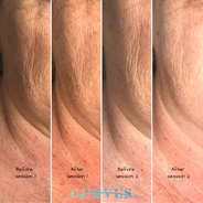 💥BOOM!!💥 This is how you turn back time!!  AlphaShape PRO is the BOMB!! Our clients are LOVING their results - and their younger, smoother skin!  The pics were taken before and after first and second AlphaShape PRO treatments.   👉Notice the different between the end of treatment 1 (pic 2) to before pic of treatment 2 (pic 3).   This image clearly demonstrates the improvement (collagen production and further tightening) that occurs between treatments!