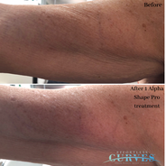 Look at these AlphaShape results 😍😍 This is after just 1 treatment on one of our beautiful 80-year-old clients. (Top part of the arm treated only)