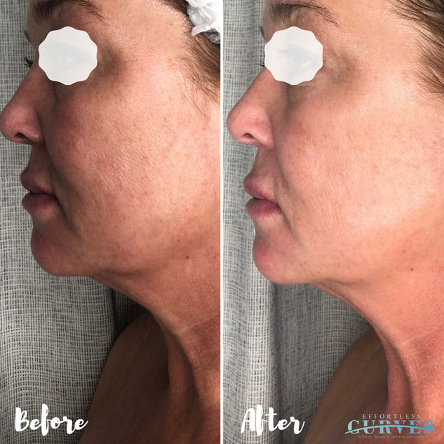 We LOVE AlphaShape! 😍 These results are after just 1 treatment. 🙌  For this client we focused on the jawline, jowls and naso lines. Great result around the eye area/crows feet!
