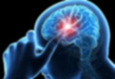 Stroke eefects th brain.