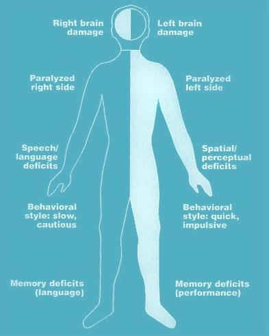 Right and left sided hemiplegia symptoms