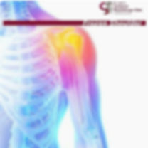 Frozen Shoulder Treatment at Dr Sahil's Advanced Physiotherapy Clinic