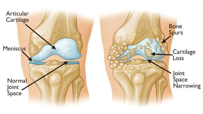 Normal Vs. OA knee