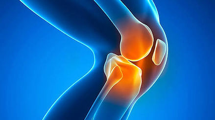 Physiotherapy treatment for knee pain/osteoarthritis at Dr Sahil's Advanced Physiotherapy Clinic