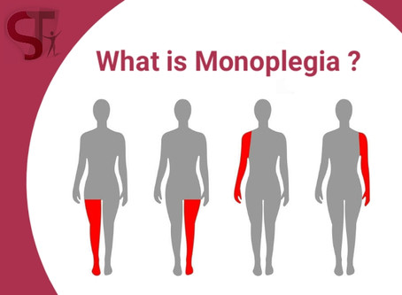What is Monoplegia and Its Effects on the Body