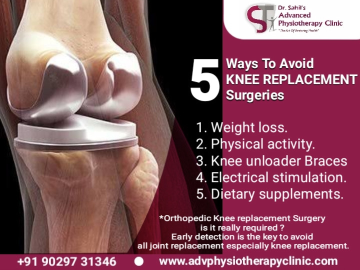 5 ways to avoid knee replacement surgeries