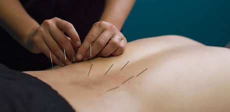 dry needling therapy also called as accupuncture therapy