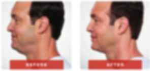 kybella-before-after-1.png