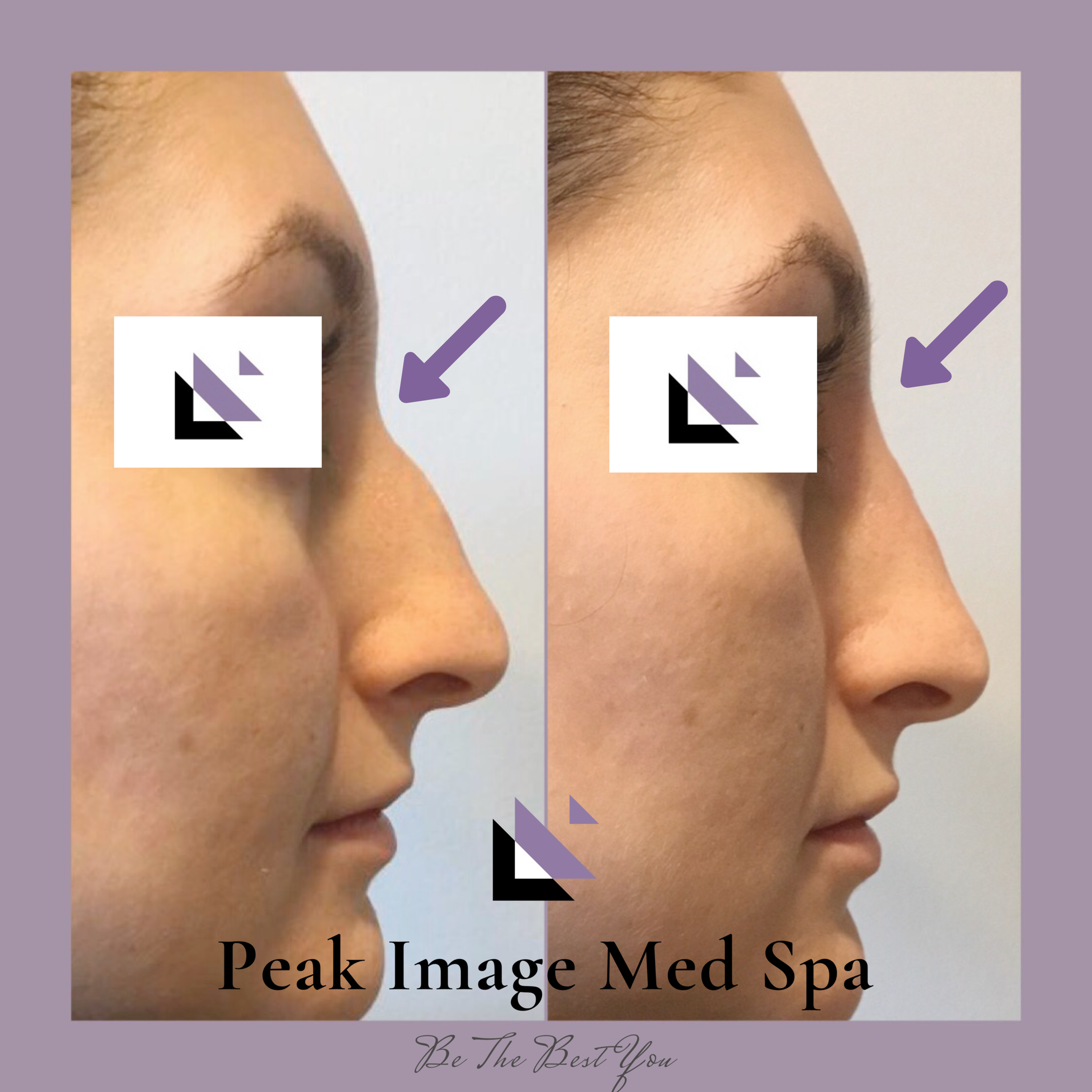 Liquid Rhinoplasty