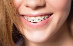 aprelho-ortodontico-1.jpg