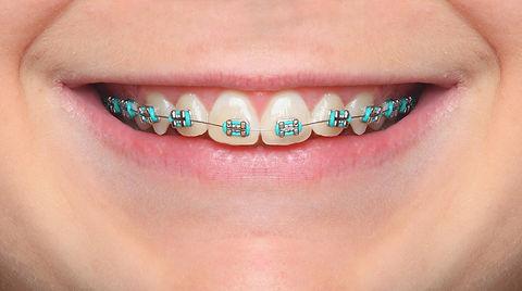 aparelho-ortodontico-2.jfif
