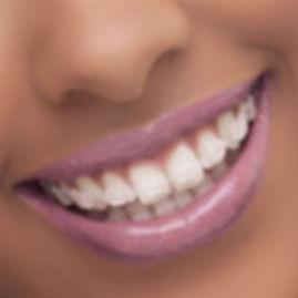 aprelho-ortodontico-safira-2.jpg