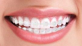 aprelho-ortodontico-safira.jpg