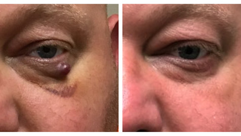 Lid lesion removal